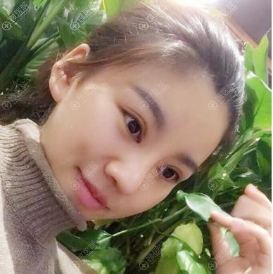 上海美莱卢建医生双眼皮隆鼻子案例