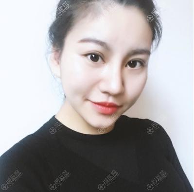 上海美莱卢建医生双眼皮隆鼻子案例图片