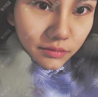 上海美莱眼鼻综合手术案例7天拆线效果