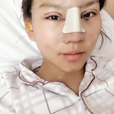 上海美莱眼综合鼻综合手术天效果
