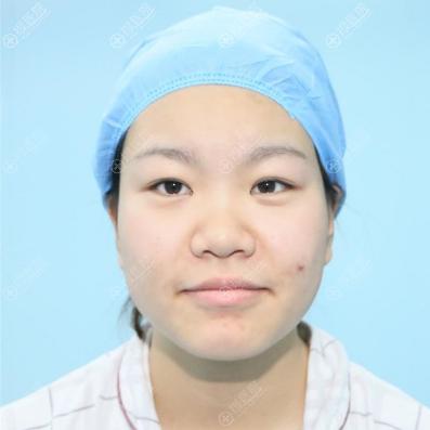 上海美莱双眼皮隆鼻案例术前照片