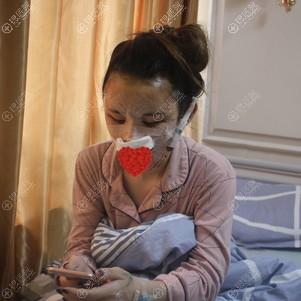 常德伊丽莎白鼻综合术后在病房