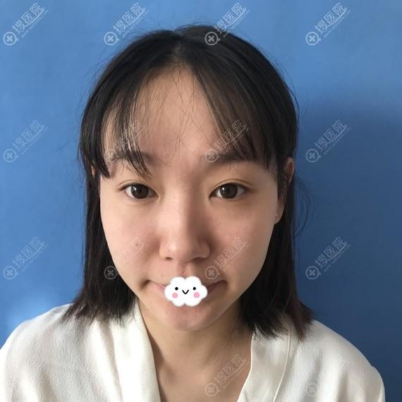 泰州丽都李丽杰假体隆鼻综合整形真人案例