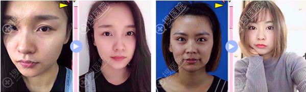 深圳美莱整形美容医院治疗后真实效果