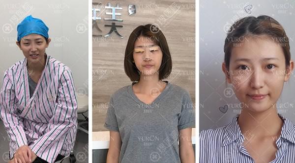 北京悦然张敏燕眼鼻综合案例