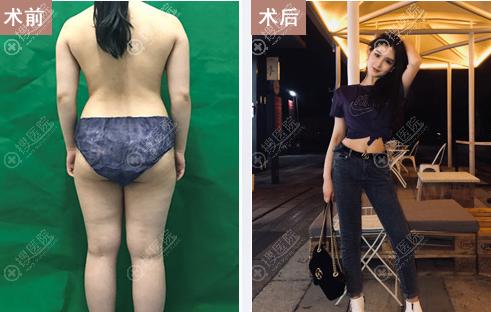 南宁韩成整形美容医院全身吸脂术后效果