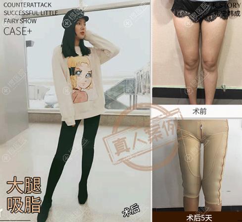南宁韩成整形美容医院大腿吸脂前后对比