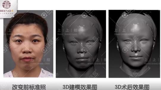 北京上上相3D模拟术后效果图