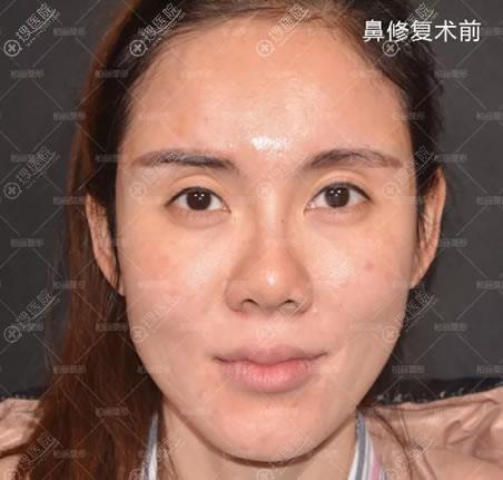 北京柏丽整形鼻修复手术前