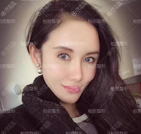 北京李劲良肋软骨鼻综合案例