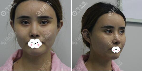 隆鼻术前正面侧面照片