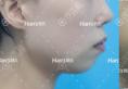 下巴整形整容有几种方式?济南韩式整形美容医院真人案例