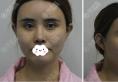 肋软骨隆鼻多久恢复?济南美神维纳斯杨芒利鼻综合术后恢复图