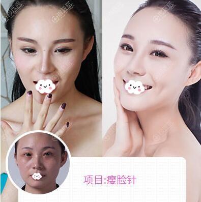 杭州美莱注射瘦脸除皱瘦脸针案例