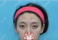 觉得沈阳腾采侯莉医生专业负责,找她给我做了双眼皮手术