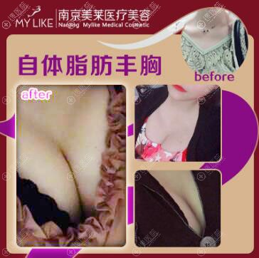 南京美莱隆胸自体脂肪丰胸案例