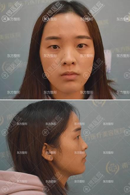 南宁东方整容医院做双眼皮和隆鼻前
