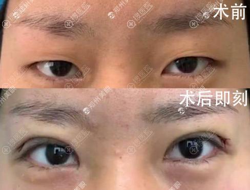 张行切开双眼皮术前术后对比