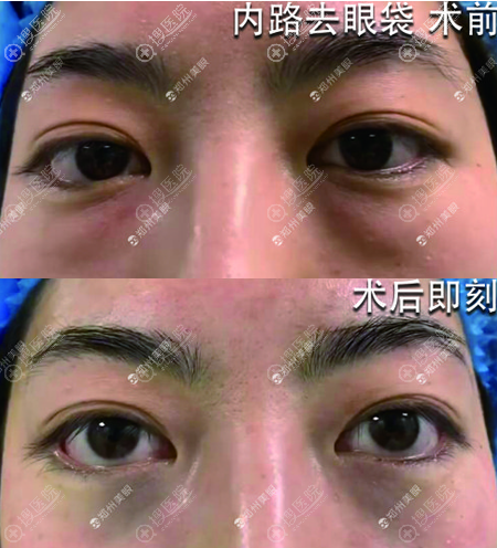 张行内切去眼袋术后即刻效果