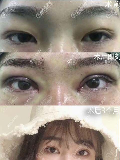 郑州美眼整形张行双眼皮修复术后效果