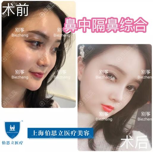 上海伯思立别筝做的鼻中隔鼻综合隆鼻案例图