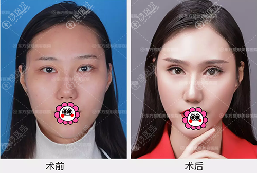 郑州东方整形贺洁芭比型双眼皮效果