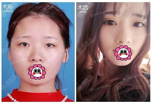 郑州东方整形贺洁芭比型双眼皮对比