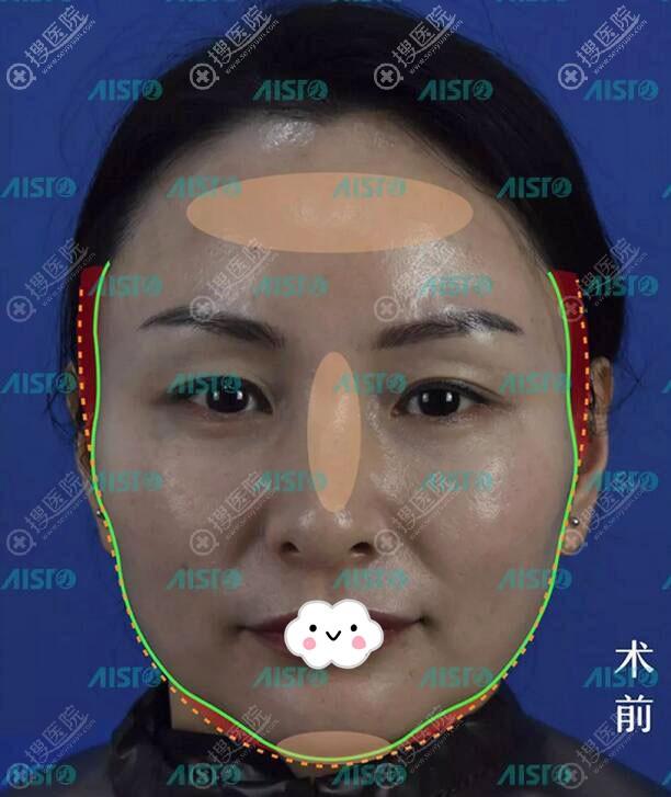 广东中山爱思特自体脂肪面部填充案例