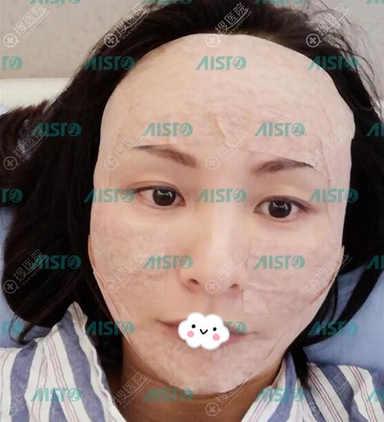 中山爱思特自体脂肪面部填充术后3天效果