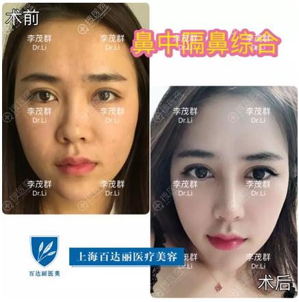 上海伯思立(百达丽)李茂群做的鼻中隔隆鼻案例