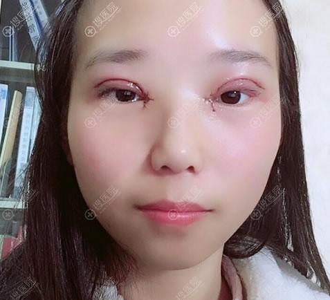 南京亚韩整形双眼皮开眼角即刻效果
