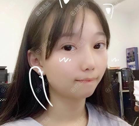 南京亚韩双眼皮开眼角案例2月效果
