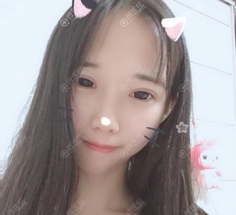 南京亚韩美容医院双眼皮开眼角案例