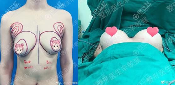 北京八大处辛敏强假体隆胸案例