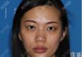 去上海伊莱美找李湘原用局麻做完双眼皮后又全麻做了肋软骨隆鼻