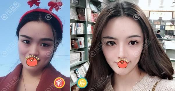北京壹加壹张绿峰隆鼻案例