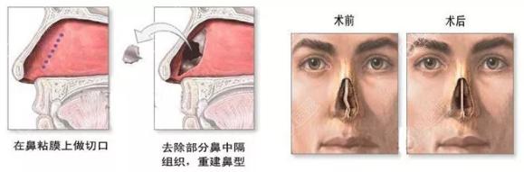 上海伯思立医院鼻中隔偏曲修复示意图