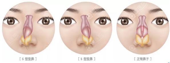 上海伯思立整形医院鼻中隔偏曲示意图