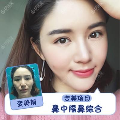 上海伯思立(百达丽)韩嘉毅做的鼻中隔隆鼻鼻综合隆鼻案例