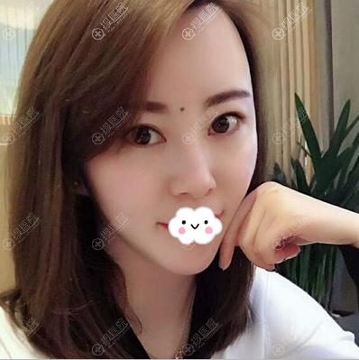 深圳仁安雅李正强面部吸脂一年后效果
