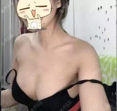 扬州施尔美医院吕启凤隆胸案例