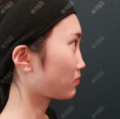 苏州薇琳医美做鼻综合隆鼻前