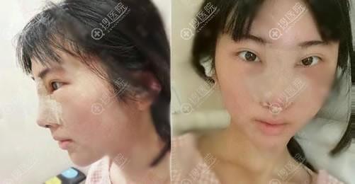 苏州薇琳刘富华隆鼻案例