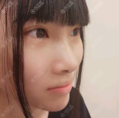 苏州薇琳整形驼峰鼻矫正案例