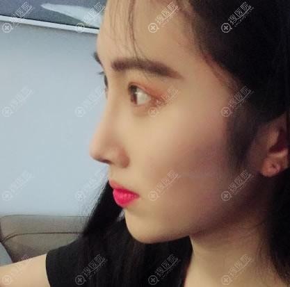 苏州薇琳刘富华鼻综合隆鼻案例