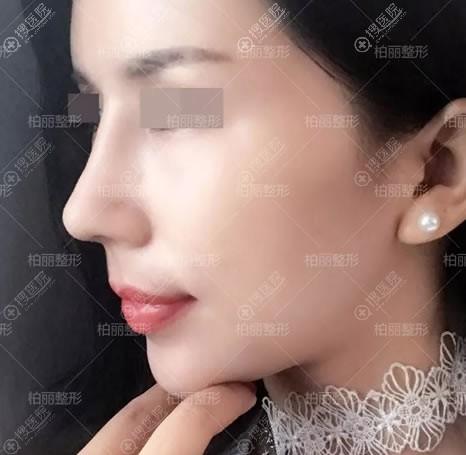 北京柏丽驼峰鼻矫正案例