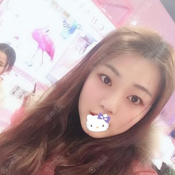 广州韩妃鼻翼缩小手术恢复一个月效果