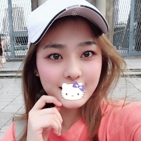 广州韩妃手术缩鼻翼三个月案例