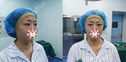 王埴铖切开双眼皮术后即刻效果
