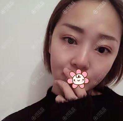 延安大学咸阳医院整形美容科王埴铖双眼皮术后效果